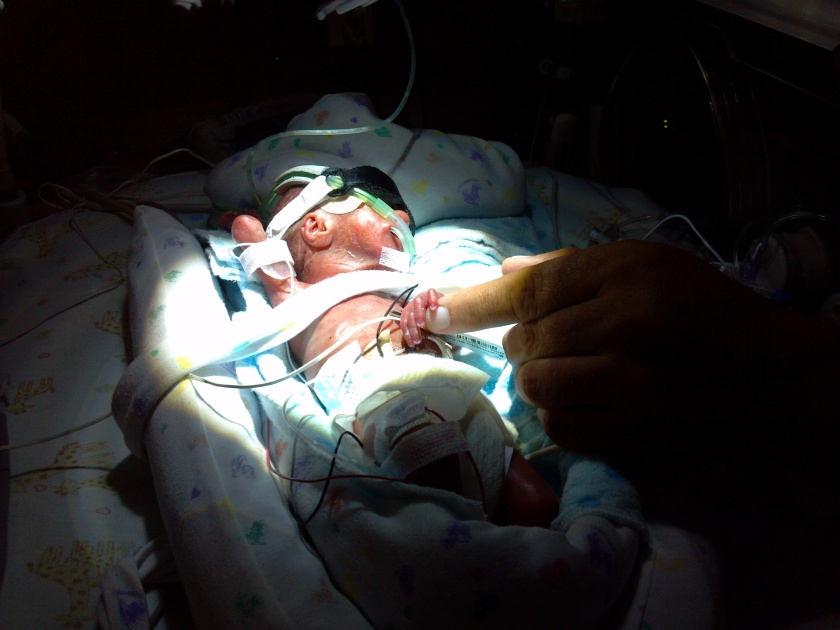 premature baby born at 23 weeks