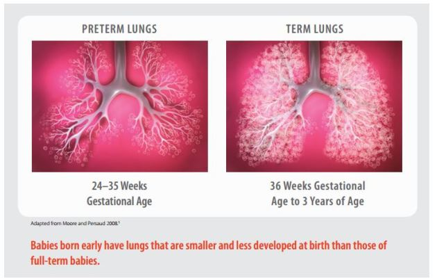 preterm vs term lungs