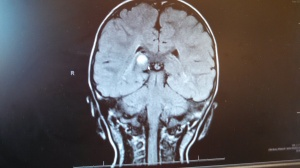 juvenile pilocytic astrocytoma MRI brain scan